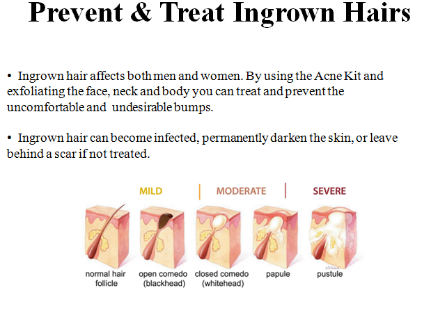 ingrown-hair-diagram-abella-skin-care-inc